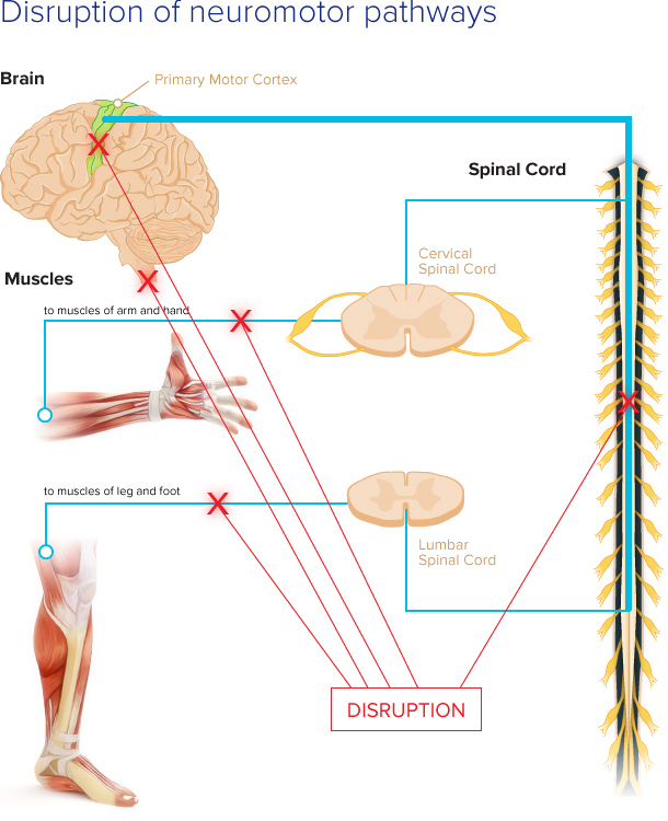 Disrupted Neural Pathways Pathmaker Neurosystems